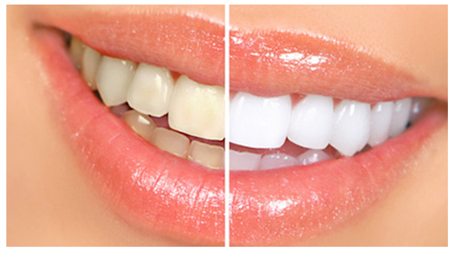 HOT or NOT   Home remedies fo bleaching your teeth